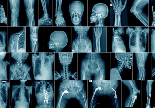 Identificación de cuerpos desconocidos confirmación de la identidad mediante estudios morfológicos comparativos